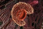 ابداع تست ۱۰۰ درصد دقیق سرطان دهانه رحم
