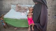 ۸۵۰۰۰ کودک در یمن به علت سوءتغذیه درگذشتهاند