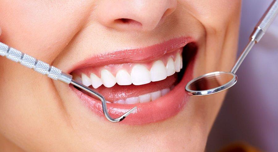 علت زرد شدن دندانها چیست؟   ۴ روش درمان زردی دندان در خانه