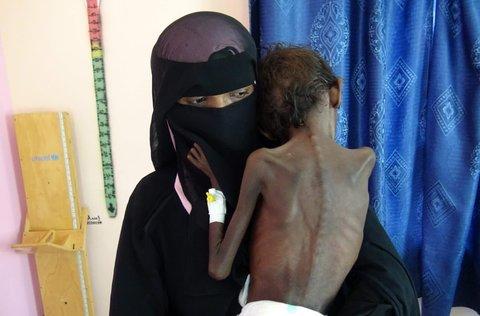 یمن - بیداد قحطی