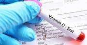 مصرف زیاد ویتامین D منجر به نارسایی کلیوی میشود
