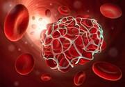 جلوگیری از خونریزی در کمتر از ۱۰ ثانیه با بندآورندههای نانو الیاف پپتیدی
