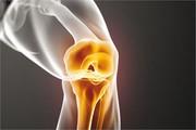 دستاورد محققان ایرانی برای درمان آرتروز با سلولهای مزانشیمی