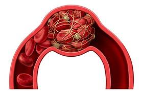 نکته بهداشتی: لخته شدن خون