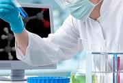 کشف پروئین مقابله کننده با ابولا در سلولهای انسانی