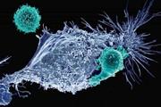 آشنایی با ایمنیدرمانی سرطان