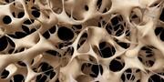 بهترین راه برای مبارزه با پوکی استخوان