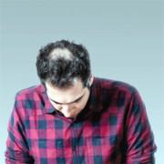 علت تضعیف ریشه مو   راهکار تعویق طاسی آقایان