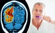 بیماری لثه ممکن است با ایجاد بیماری آلزایمر ارتباط داشته باشد