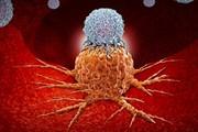 ایجاد موج بزرگ سرطان در کشور با افزایش جمعیت سالمند