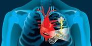 تولید ضربانساز قلبی که با خود قلب شارژ میشود