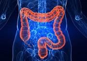 کم خونی از علائم اولیه سرطان روده