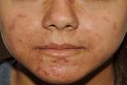 محرکهای شایع بروز آکنه پوستی را بشناسیم