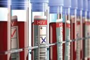 سومین بیمار هم از شر ایدز خلاص شد