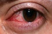 ارتباط میگرن با خشکی چشم