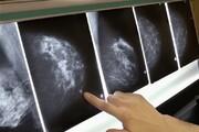 باورهای نادرست درباره توده پستانی و سرطان پستان