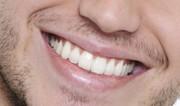 سفیدکنندههای دندان چه آسیبی به دندانها میزنند؟