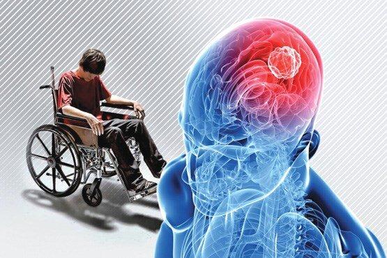 روانشناس ایرانی روش جدیدی برای تسکین بیماران ام اس یافت