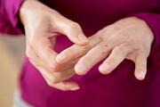 ۱۶ درصد ایرانیهای بالای ۱۵ سال آرتروز دارند
