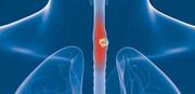 چای داغ مهمترین علت شیوع سرطان مری |  نقش تریاک در ایجاد ۵ سرطان