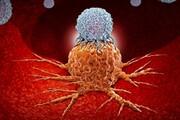 اختلال در ریتم شبانه روزی بدن موجب رشد تومور سرطانی میشود