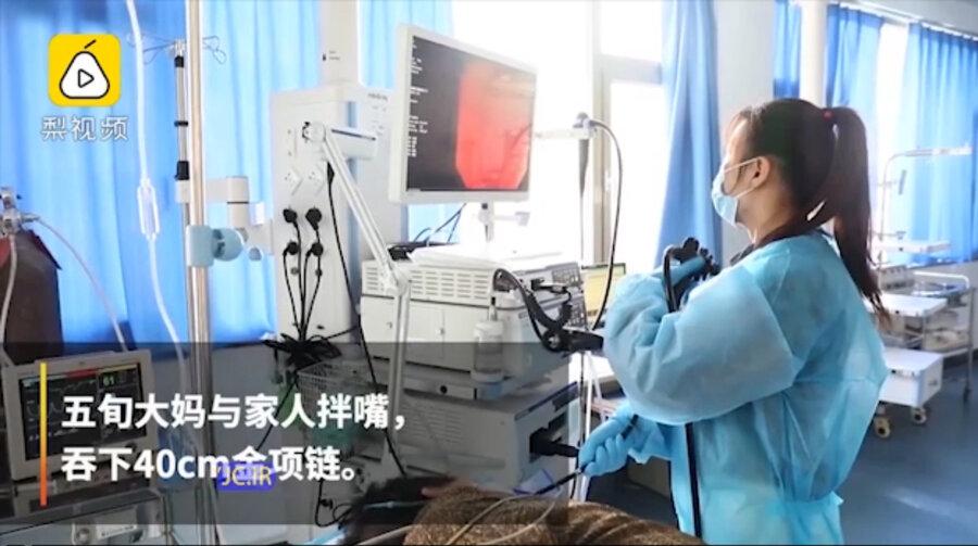 زن چيني در دعواي خانوادگي گردنبند ۴۰ سانتیمتری را قورت داد