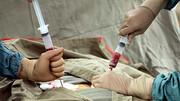 اولین پیوند سلولهای بنیادی خونساز در بیمار دارای ویروس ایدز در ایران