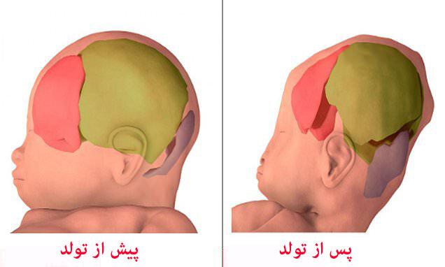 ثبت تصاویر سهبعدی از عبور نوزاد از کانال زایمانی