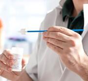 آزمایش ادرار بهجای پاپ اسمیر برای تشخیص سرطان دهانه رحم