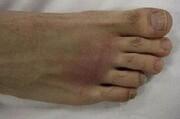 دلایل انحراف انگشت شصت پا | ۱۵۰ نوع روش جراحی