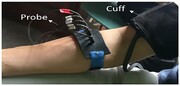 تشخیص سریع سکته مغزی با استفاده از دستگاه هیبریدی