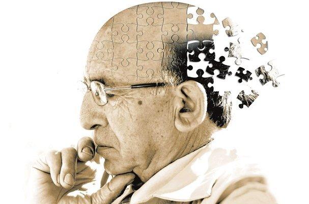نقش جراحي كاهش وزن و احتمال كاهش ابتلا به آلزايمر