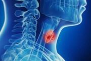 روشی نوین برای انجام عمل جراحی تیرویید بدون جای زخم
