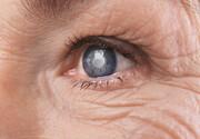 نکته بهداشتی: پیشگیری از گلوکوم (آب سیاه)