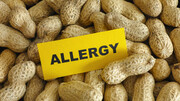 نکته بهداشتی: آلرژی غذایی