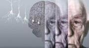 روشی جالب برای درمان بیماران مبتلا به آلزایمر