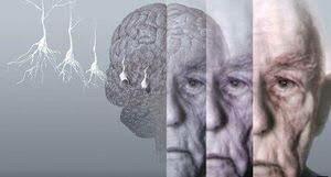 روشي جالب براي درمان بيماران مبتلا به آلزايمر