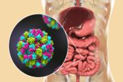 نکته بهداشتی: عفونت ویروسی معده و روده