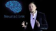 ایده استارتاپی ماسک: کاشتن تراشه مغزی برای کنترل رایانه