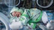 پزشکان میزان بیلی روبین نوزاد را باید بسنجند