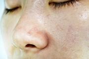 نکته بهداشتی: کنترل پوست چرب