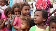 سازمان ملل: عربستان و امارات مسئول قتل صدها کودک در یمن هستند
