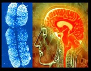 شناسایی ژنهای مرتبط با ناتوانی ذهنی سرعت گرفت