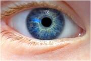 عوامل ابتلا به آب مروارید | درمان بموقع از نابینایی پیشگیری میکند