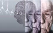 تستی برای تشخیص زودهنگام آلزایمر