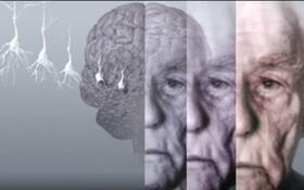 تشخیص زودهنگام آلزایمر، آلزایمر،علائم آلزایمر