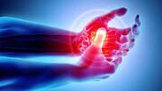 نکته بهداشتی: آرتریت دستها