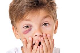 نکته بهداشتی: درمان کبودی چشم