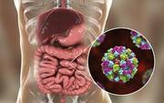نکته بهداشتی: پیشگیری از نوروویروس