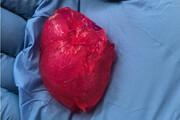 تولید قلب مینیاتوری با پرینتر زیستی